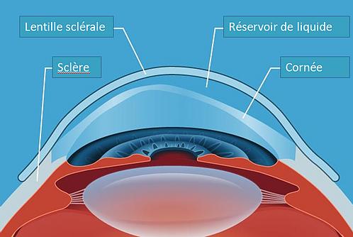 keratocone-lentille-sclerale-bordeaux