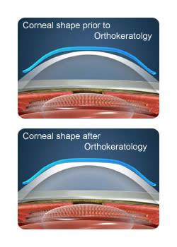 orthokeratologie-bordeaux-thiers